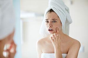 Traitement de l'acné
